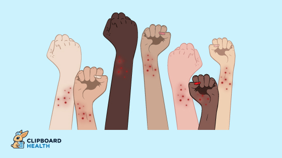 Arms of different colors sporting the same dermatological condition