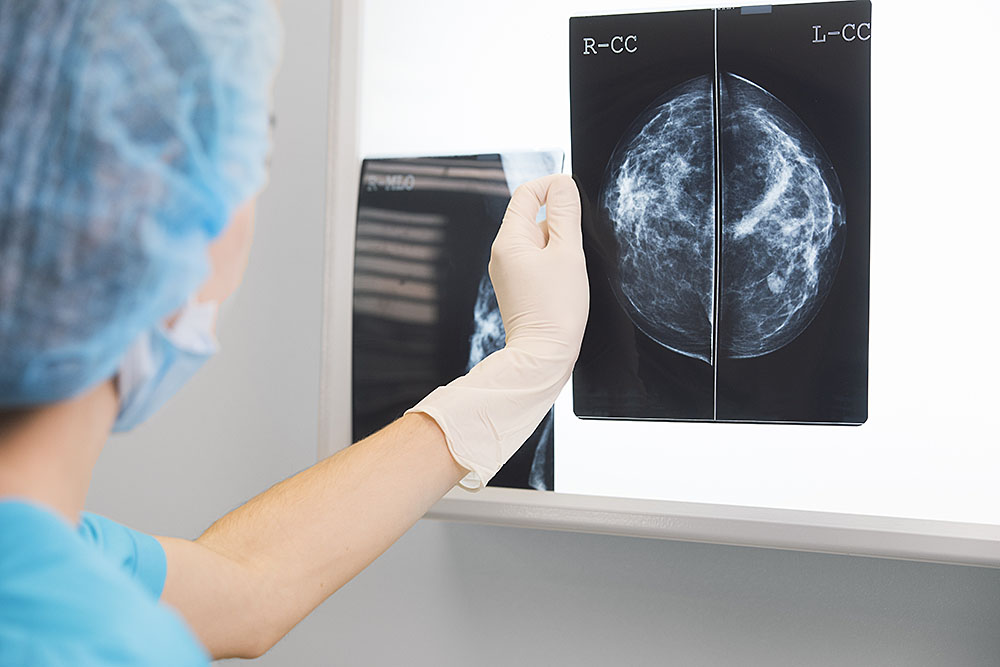 Read more about the article The Many Forms of Breast Cancer